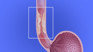 Banner Minimally Invasive Esophagectomy