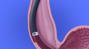 Banner Esophageal Surgery